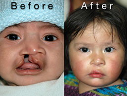 Before and after of Guatemalan child with cleft lip